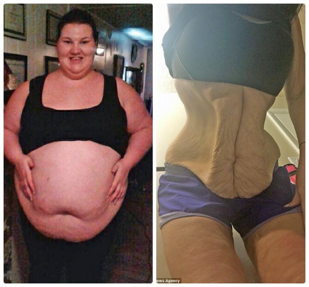 Картинки по запросу orang yg berhasil menurunkan berat badan